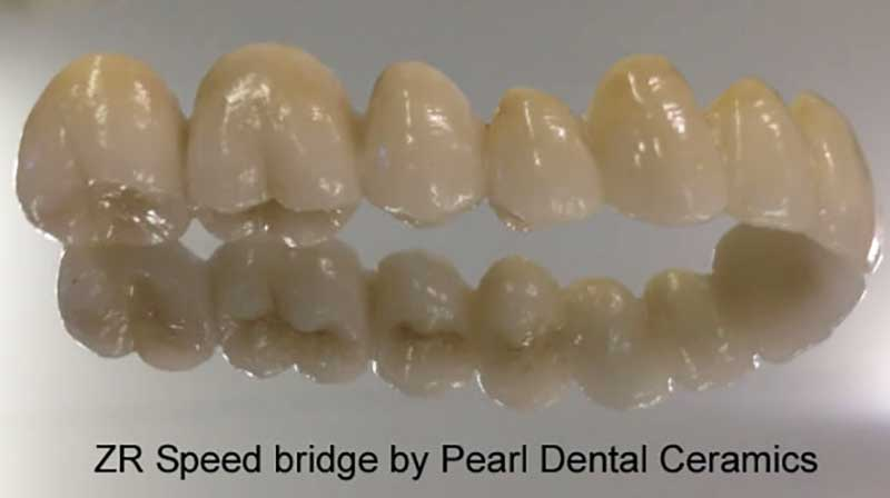 ZR Speed Bridge by Pearl Dental Ceramics